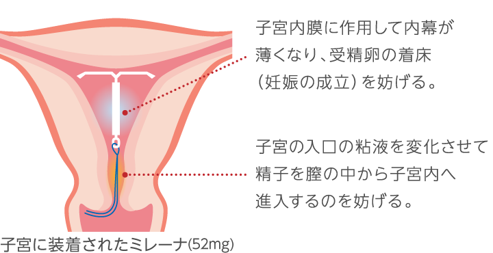 避妊 リング 手術